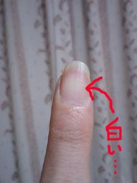 元・痔主のトメちゃんの手術体験談と痔・豆知識-爪が白いと貧血らしい