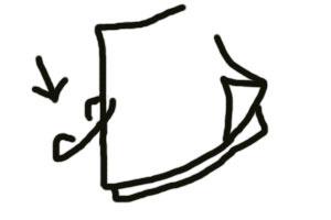 元・痔主のトメちゃんの手術体験談と痔・豆知識-ホチキス