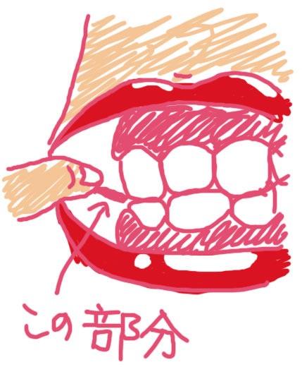 元・痔主のトメちゃんの手術体験談と痔・豆知識-歯